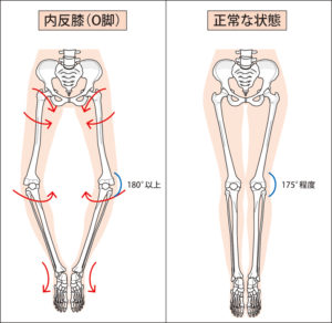 O脚│原因と対処法   ほねごりチェーン
